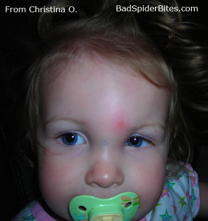 Picture of Spider Bite on Baby Christina