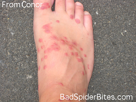 Feet Red Bumps-On