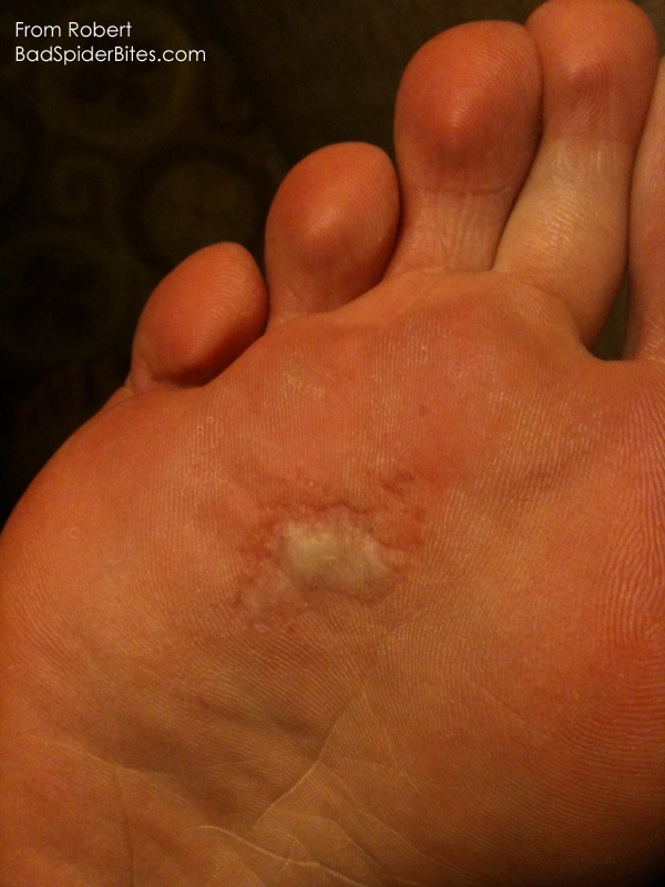 bite on the bottom of a foot